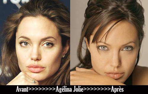 Avant après «Angélina Jolie»