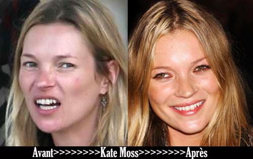 Avant après «Kate Moss»